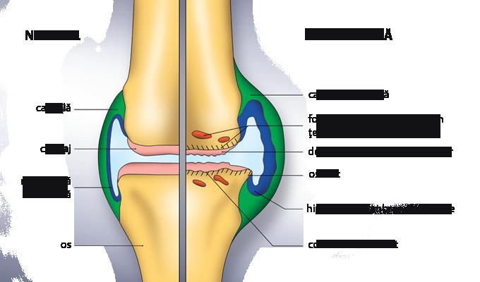 cum să îmbunătățiți articulațiile genunchiului durere în timpul efortului în articulația genunchiului