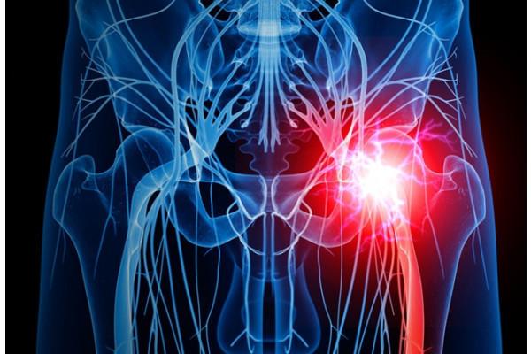 pierderea în greutate va ajuta la durerea de șold