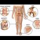 Poliartrita reumatoida - Apollus Institute