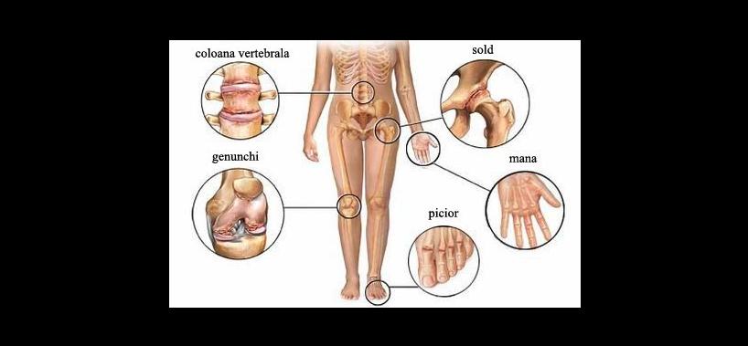 conceptul bolilor articulare tratamentul artrozei de șold în Germania
