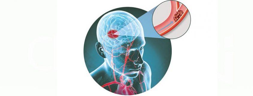 Accidentul vascular cerebral - Apollus Institute