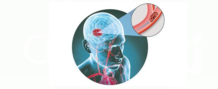 ameliorarea durerii articulare după accident vascular cerebral