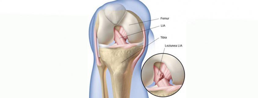 Leziunea ligamentului incrucisat anterior - Apollus Institute