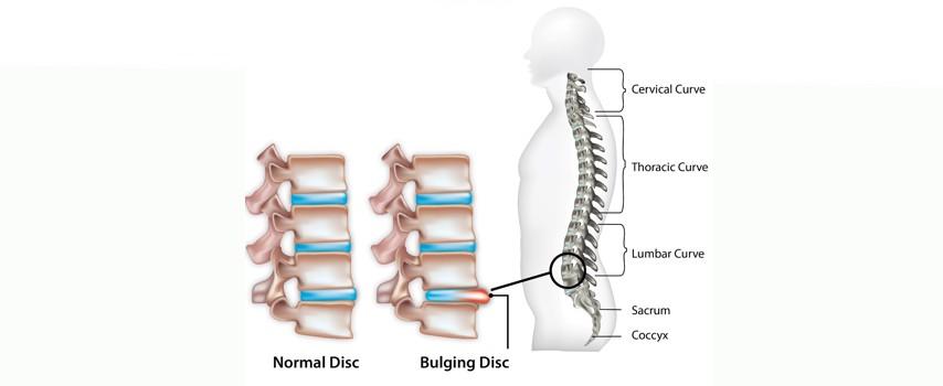 Hernia de disc - cauze, simptome, tratament
