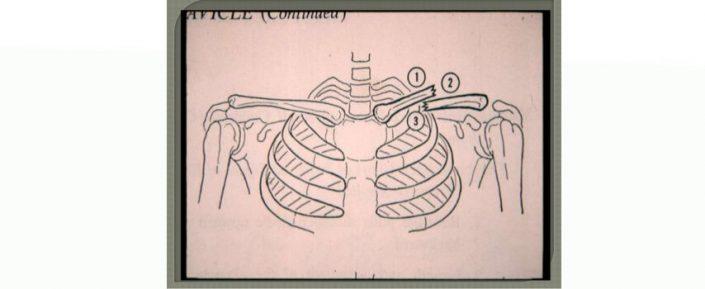 Fractura de Clavicula - Apollus Institute